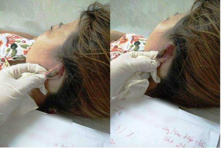 Hoại tử vành tai, mất da đầu khi hấp tóc đón Tết